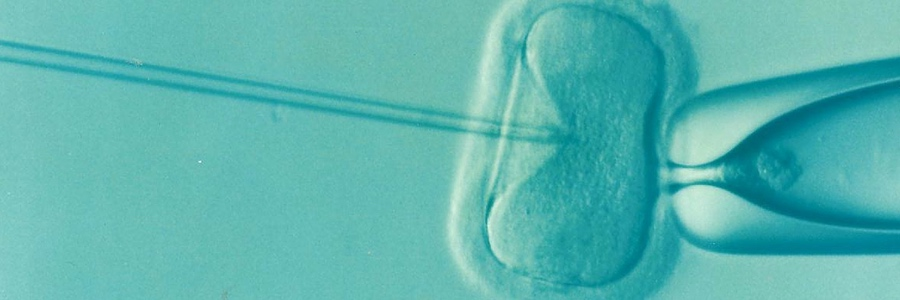 A microscope image of IVF